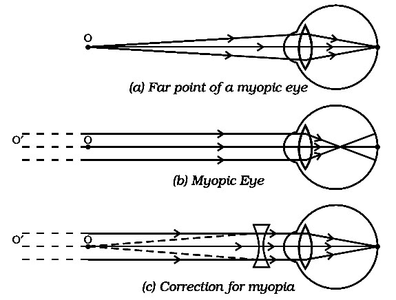 The human eye and the colorful world ncert exemplar dronstudy explain using diagrams how the defects associated with myopic and hypermetropic eye can be corrected sol we consider a person myopic if he cannot see ccuart Image collections